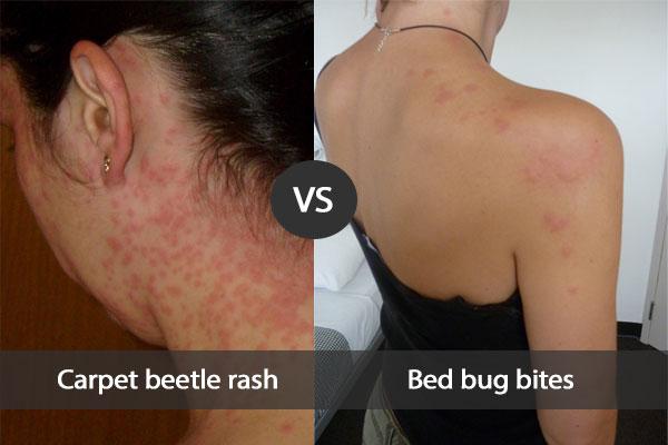 Carpet Beetle Rash Vs Bed Bug Bites Prime Pest Control London